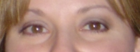 Linda_eye_crop_before_diagnosis_2